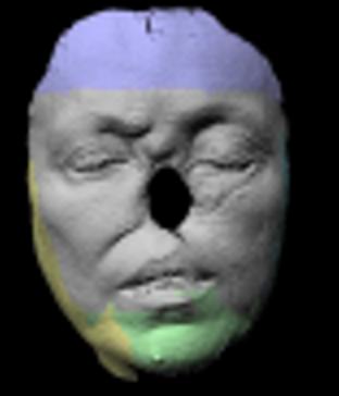 escaneado 3d para una nariz, escaneado de la cara de una persona que le falta la nariz